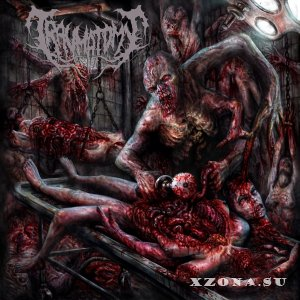 Traumatomy - Beneficial Amputation Excess Limbs [EP] (2014)