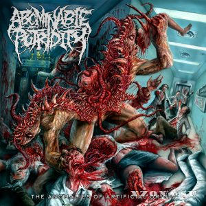 Abominable Putridity - The Anomalies Of Artificial Origin (Remixed & Remastered) (2015)